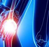 Как восстановить связки коленного сустава?